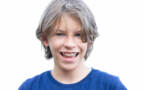 niño con tratamiento de ortodoncia