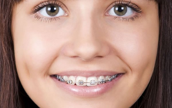joven con una ortodoncia perfecta