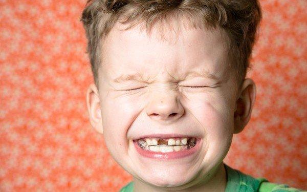 niño sin un diente