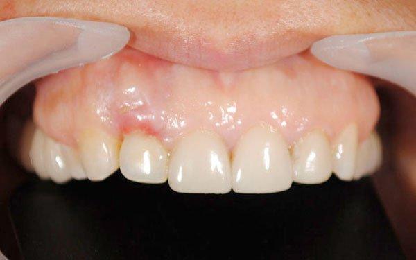 Piorrea dental