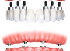 Técnica all on four en implantes: sonrisa nueva en un día