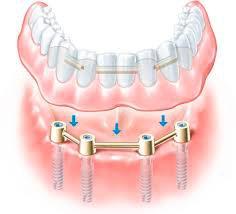 ¿Qué son las sobredentaduras sobre implantes?