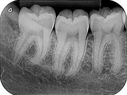 ¿Son seguras las radiografías dentales?