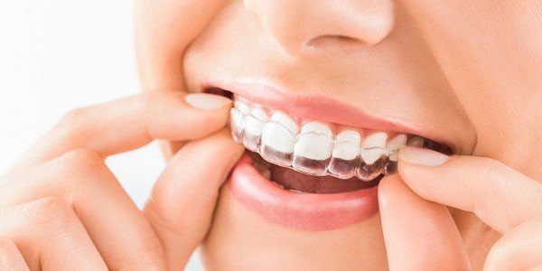 Clinica dental invisalign Granada